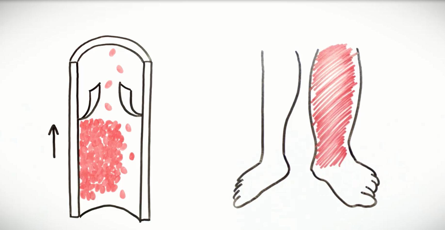 Symptomer dyp venetrombose