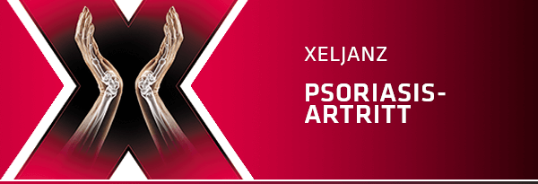 Xeljanz (tofacitinib) og behandling av psoriasis artritt (PsA) - tablettbehandling